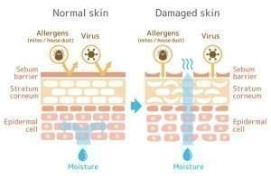 healthy vs wounded skin