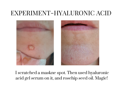 hyaluronic acid and acne