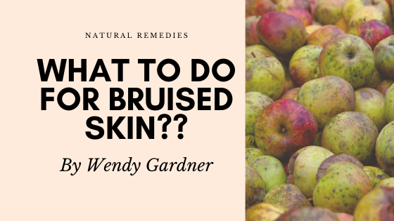bruises natural remedies